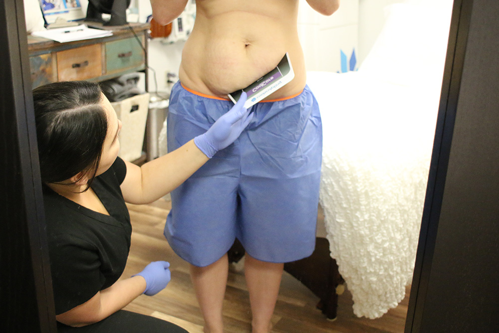 All About My CoolSculpting Experience