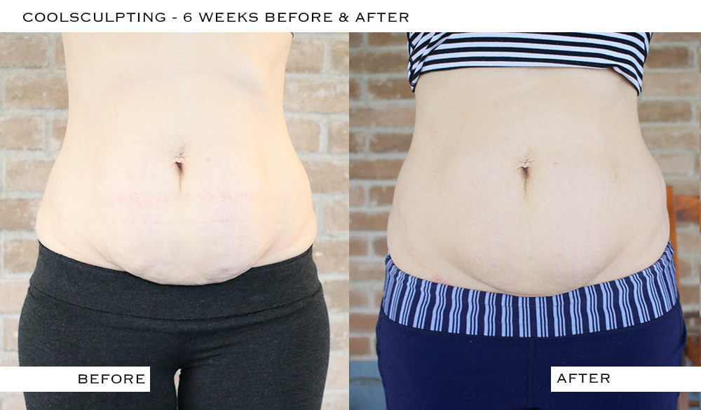 Coolsculpting Before Amp After Pictures 6 Weeks It S Pam Del
